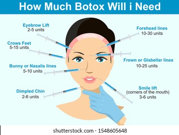 How much Botox will I need. Infographics. Botox injection. Woman facial wrinkle treatment.