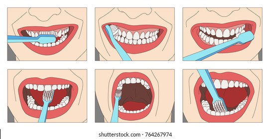 How to Properly Brush Your Teeth Step by Step. Instructions for proper techniques for brushing your teeth.