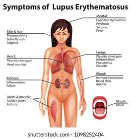 Young women 🌱 lupus in Lupus