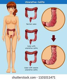 Human Anatomy of Ulcerative Colitis illustration