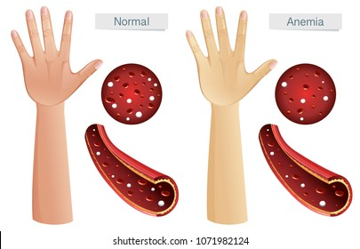 Human Anatomy Vector of Anemia illustration