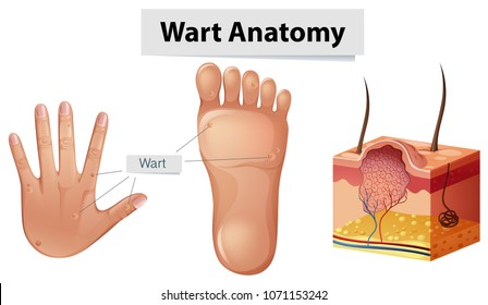 Human Anatomy Wart on Hand and Foot illustration