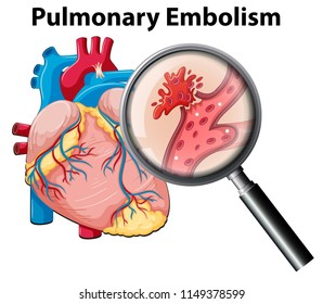 Human anutomy pulmonary embolism  illustration