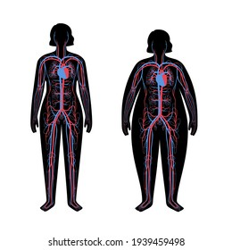 Human arterial and venous circulatory system in obese female body. Blood vessels diagram in overweight and normal woman silhouette. Infographic for medical use. Anatomical vector isolated illustration