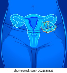 Human body ovarian cancer