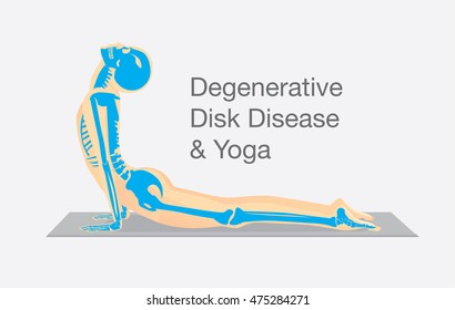 Human bone anatomy while Yoga workout in cobra posture. This illustration about degenerative disk disease therapy with Yoga.