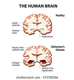 The human brain. Cross section. Healthy and brain with Alzheimer's disease (dementia, senility)