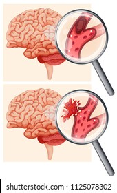 Human Brain and Hemorrhagic Stroke illustration