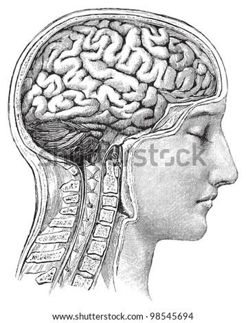 Die Brain