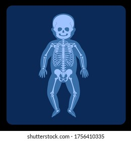 Human child skeleton anatomy in front on x ray view. Vector isolated flat illustration of skull and bones in baby body. Medical, educational or science banner on blue background.