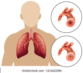 Human Chronic Obstructive Pulmonary Disease illustration