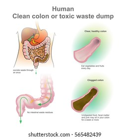 Human clogged colon, healthy colon. Toxic waste dump. Vector, Illustration.