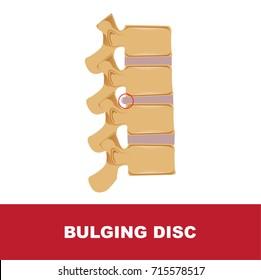 human disc degeneration. bulging disc