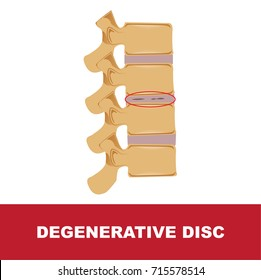 human disc degeneration. degenerative disc