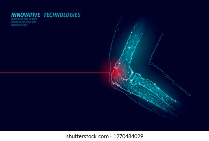 Human elbow joint 3d model vector illustration. Low poly design future technology cure pain treatment. Blue background and red injury man body arm medicine template