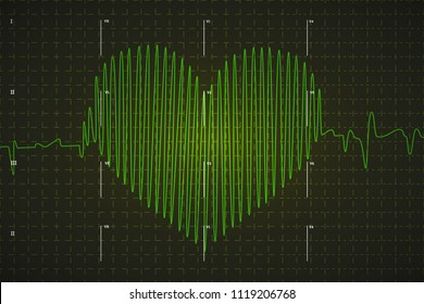 Human electrocardiogram graph in heart shape, bright green graph on dark background with medical marks