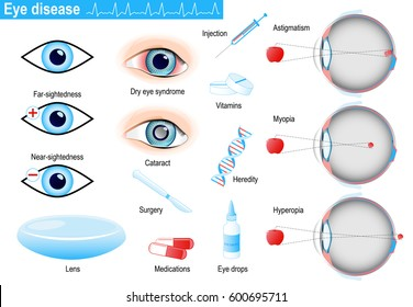 human eye diseases and disorders. Medical Infographic set with icons and other elements. medical symbols for design