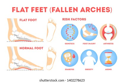 Human foot pathology infographic. Flat foot anatomy. Deformed and healthy footprint. Illness therapy and risk factor. Isolated vector illustration in cartoon style