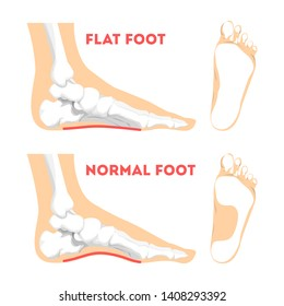 Human foot pathology infographic. Flat foot anatomy. Deformed and healthy footprint. Illness therapy. Isolated vector illustration in cartoon style