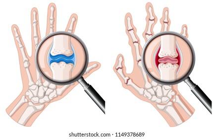 A human hand with rheumatoid arthritis illustration