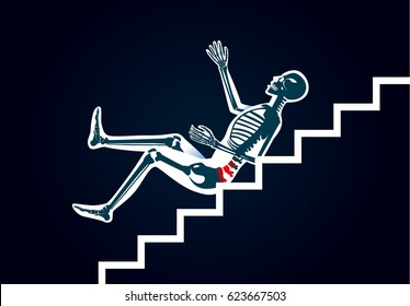 Human have back pain from slip down stairs. Illustration about cause of body injury