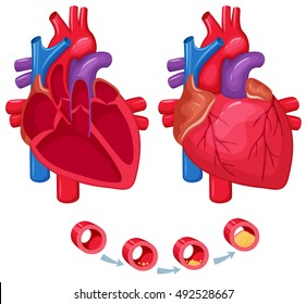 Human heart anatomy. Medical science vector illustration. Normal internal organ section: atrium and ventricle, aorta, pulmonary trunk, valve and vein. The process of atherosclerosis