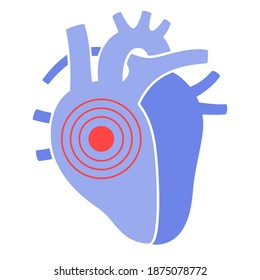 Human heart logo for cardiology clinic. Cardio and healthcare concept. Cardiovascular disease, pain and treatment. Cardiomyopathy and cancer in Internal organ. Medical poster. Flat vector illustration