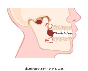 Human jaw with wisdom teeth side view. Abnormal eruption of the teeth, dental problem. Vector illustration in cartoon style