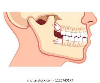 Human jaws model with teeth row. Impacted upper and lower wisdom tooth pushing adjacent teeth. Wisdom third molar tooth problem. Dentistry and dental surgery concept. Flat vector illustration on white