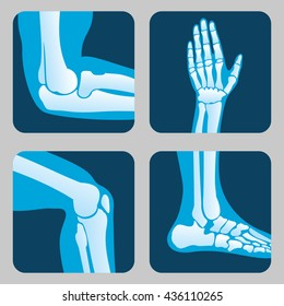 Human joints, knee and elbow joint, ankle joint and wrist. Medical orthopedic vector set. Anatomy human orthopedic illustration of leg and hand