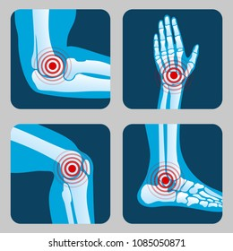 Human joints with pain rings. Arthritis and rheumatism infographic. Medical app vector buttons. Disease in joint bone, knee, leg and hand illustration