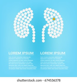 Human Kidney With Pills Isolated On A Background Realistic Vector Illustration. Medical concept created by pills.