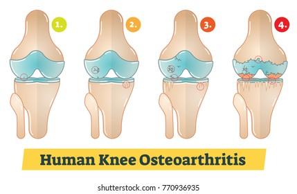Human Knee Osteoarthritis vector diagram illustration