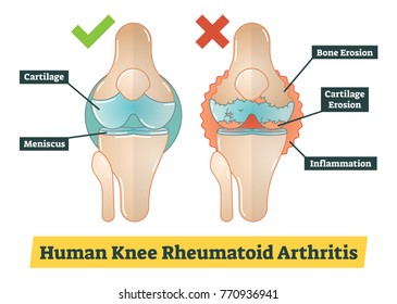 Human Knee Rheumatoid Arthritis vector diagram illustration
