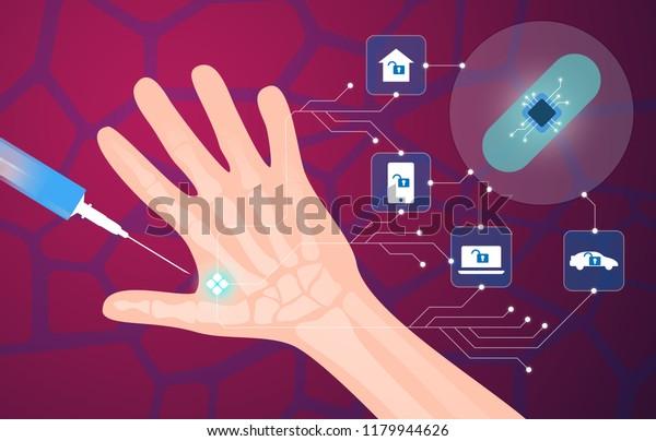Menschliches Mikrochip-Implantat in der Hand. NFC-Implantat. Implantierter RFID-Transponder. Vektorgrafik