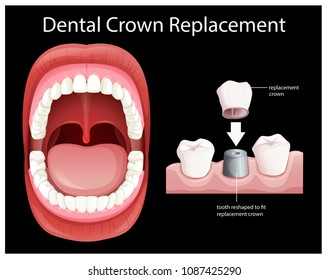 Human Mouth Dental Crown Replacement illustration