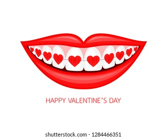 Human mouth with heart braces. Vector illustration isolated on white background. Dental care concept.