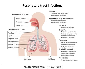 Human respiratory system with description of the corresponding parts. Respiratory tract infections of upper and lower respiratory tracts. Anatomical vector illustration in flat style.