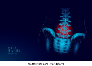 Human spine hip lumbar radiculitis pain low poly. Geometric polygonal particle triangle point line future medicine technology blue red painful area vector illustration