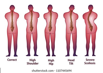 Human spine posture Back view