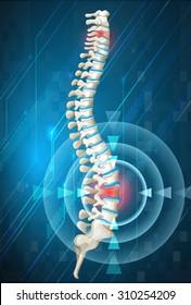 Human spine showing back pain illustration