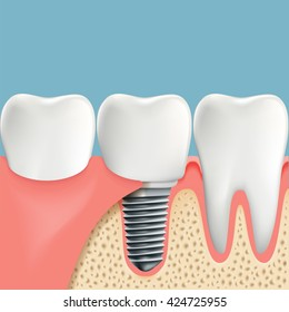 Human teeth and Dental implant. Anatomy of the oral cavity. Stock vector illustration.