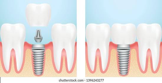 Human teeth and dental implant cut scheme. Stock vector illustration, eps 10.