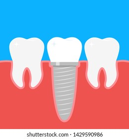 Human teeth and Dental implant. Stock vector illustration