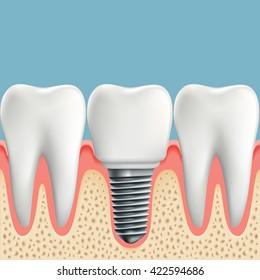Human teeth and Dental implant. Stock vector illustration.