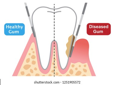 human teeth of gum disease and normal teeth illustration isolated on white background. dental and health care concept