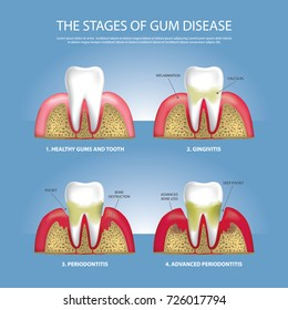 Human teeth Stages of Gum Disease Vector Illustration