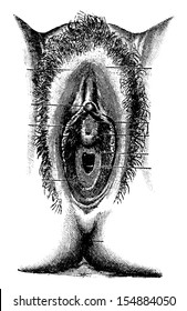 Human Vulva, vintage engraved illustration. Usual Medicine Dictionary by Dr Labarthe - 1885