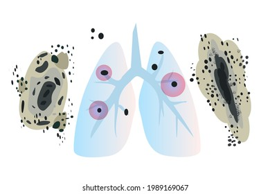 Human's lungs with fungi Aspergilloma Black mold colonies, allergenic black mildew spots, dark fungus colonies isolated, wall mouldiness, mustiness, rot. Flat vector illustration isolated on white