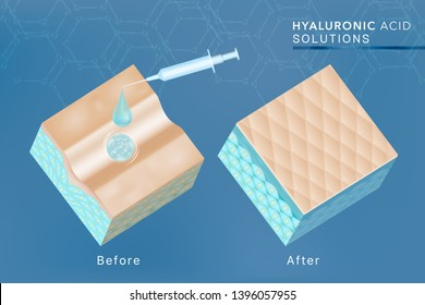 Hyaluronic acid before and after skin solutions ad, blue collagen serum drop with cosmetic advertising background ready to use, syringe in 3d illustration.